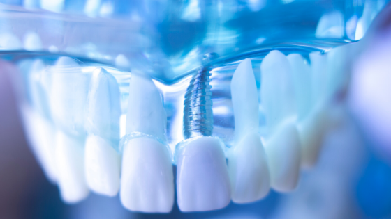 How Dental Implants Can Impact Confidence