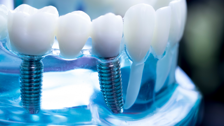 What to look for in a Dental Implant Surgery Center?